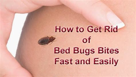 rid  bed bugs bites fast  easily arbkan
