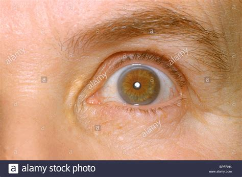eyeing an eyeball risks high the left eye of a patient showing the effects of