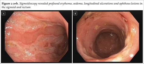 Crohn S Stool by Article Late Onset Inflammatory Bowel Disease In The
