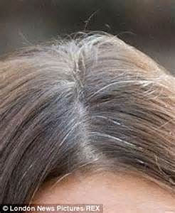 gray pubic hairs kate middleton pubic hair photos dark brown hairs