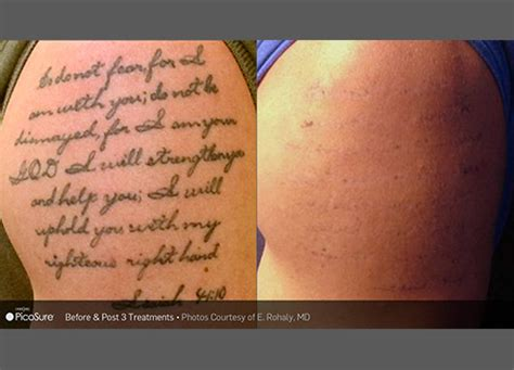 tattoo removal timeline laser removal specialist park slope ny