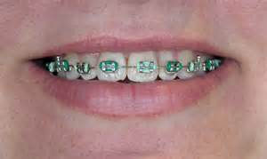 braces rubber band colors rubber bands for braces open wide more senior citizens