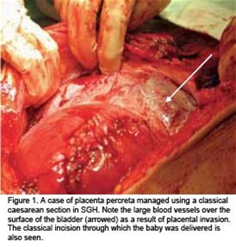 Anterior Placenta And C Section by The Well Rounded Placenta Accreta Part Four