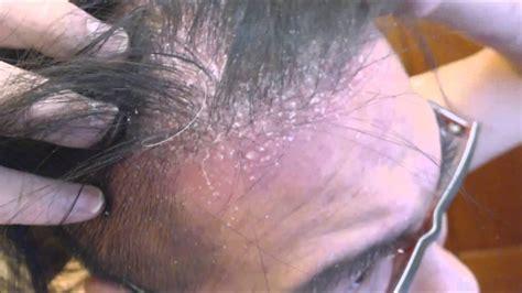dandruff livestrongcom dandruff vs dry scalp flakes hairstylegalleries com