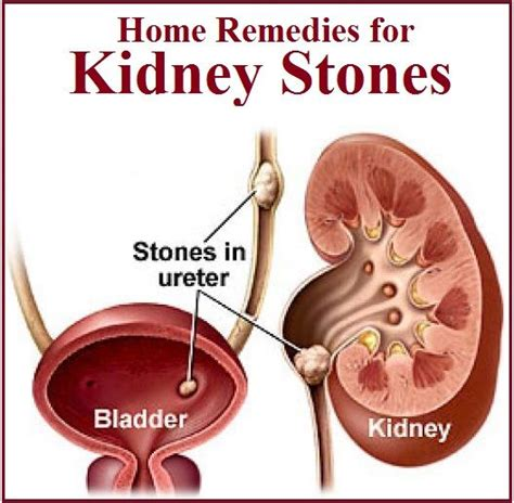 home remedies for kidney stones health