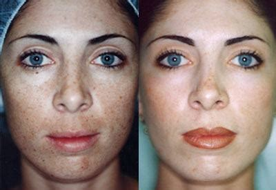 light chemical peel before and after chemical peels 101 all you ll need to