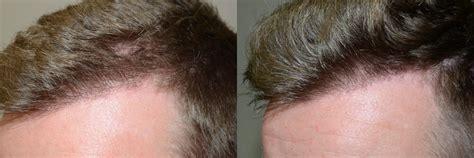 hair plugs for men hair transplants for men photos miami fl patient 40177
