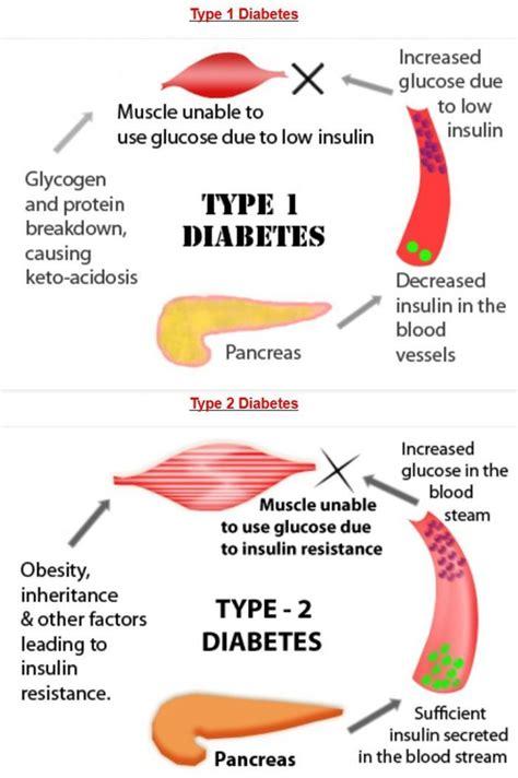 Detox Diet For Type 1 Diabetics by Diabetes Type 1 Diabetes V S Type 2 Diabetes Infographic