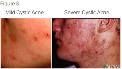 Regular Acne do i cystic acne symptoms warnings and treatment