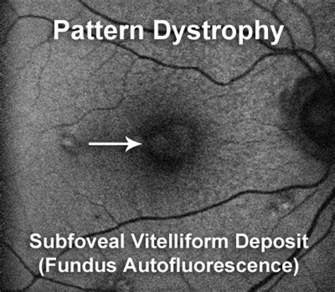 Pattern Dystrophy Cure | pattern dystrophy a subtype of dry macular degeneration