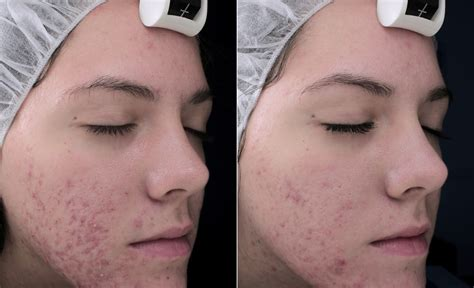 best acne light therapy natural blackhead acne treatment