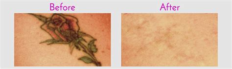 tattoo removal jacksonville tattoo removal in jacksonville at obi plastic surgery