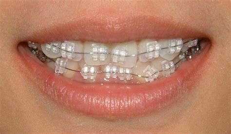 braces colors that make teeth whiter white braces colors braces teeth