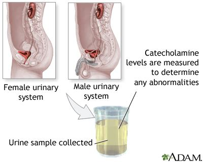 Catecholamines Also Search For Catecholamine Urine Test Medlineplus Encyclopedia Image