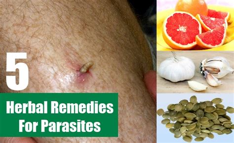 tapeworm treatment home remedy treatment for parasites images frompo 1