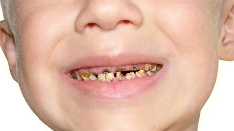 hundreds of manawat絆 children with rotting teeth cost big