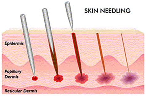 tattoo needle going in skin wssugeript dry needling for the older adult