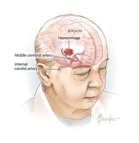 stay a brain bleed a in the balance a story books hemorrhagic stroke cerebrovascular disease jama the
