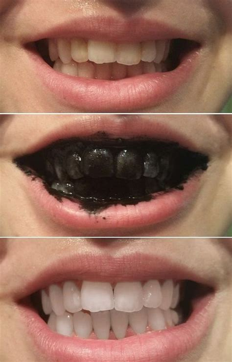 ideas  charcoal teeth whitening  pinterest