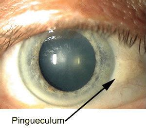 pingueculum and pterygium | romanoff optical/vision