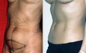 c section and tummy tuck before and after 187 tummy tuck