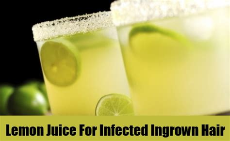 infected ingrown hair home remedies