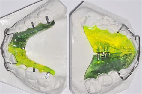 apparecchio interno costo ortodonzia bambini apparecchio denti