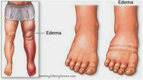 How To Relieve Swelling After Section by Water Retention In Your Legs And Ankles Relieve Swelling