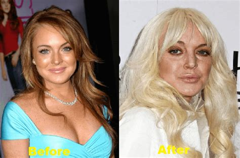 Linday Lohan And Are Terrible Actors by 11 Actresses Who Look Horrible After Plastic Surgery