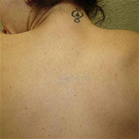 ink blasters precision laser tattoo removal in metro detroit