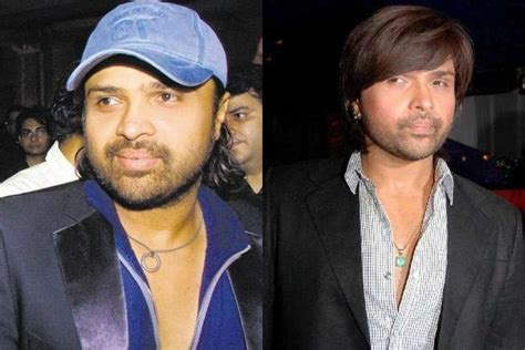 himesh reshammiya hair transplant bald to beautiful celebrities who have had hair transplants