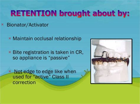 Cd E Book Rention And Stability In Orthodontics retention and relapse in orthodontics