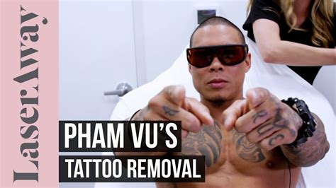 tattoo removal experience pham vu s removal experience at laseraway