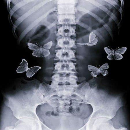 imagenes mariposas en la panza el est 243 mago digiere las emociones sonopuntura