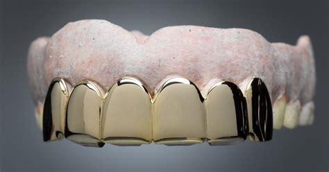 diy glue  false teeth ehow uk