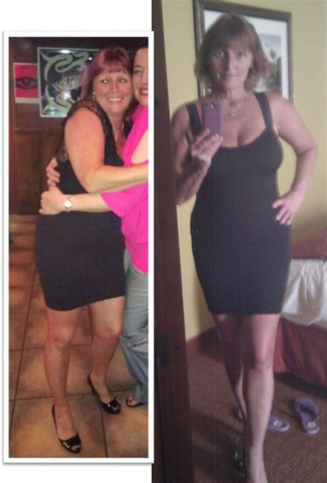 Lbs 15 Month Mba by Proof Nowloss Works Weight Loss Before After Pics