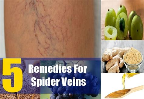 home remedies for spider veins treatments cure