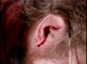 klb pijnlijke oren door naar een disco te gaan forum