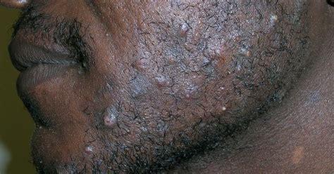 photos on hair bumps pubic hair mens razor bumps on neck razor bumps for black men