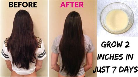 How To Grow 2 4 Inches Of Hair In One Week | grow 2 inches of hair in just 7 days 4 ingredients hair