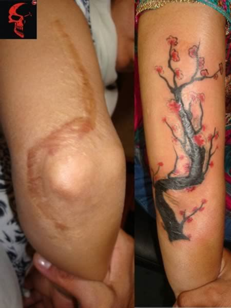 tattoo scar cover up pictures 12 coolest tattoos covering scars tattoos over scars