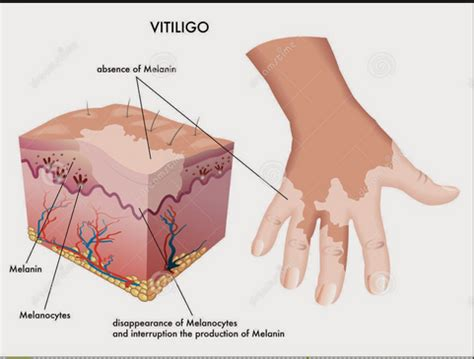 Qnc Jelly Gamat Vitiligo obat yang aman untuk penyakit vitiligo minimarket herbal