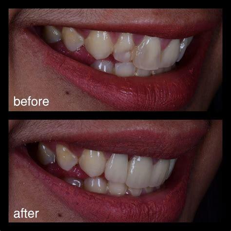 Veneer Pemutih Gigi veneer gigi murah jakarta 2 audy dental