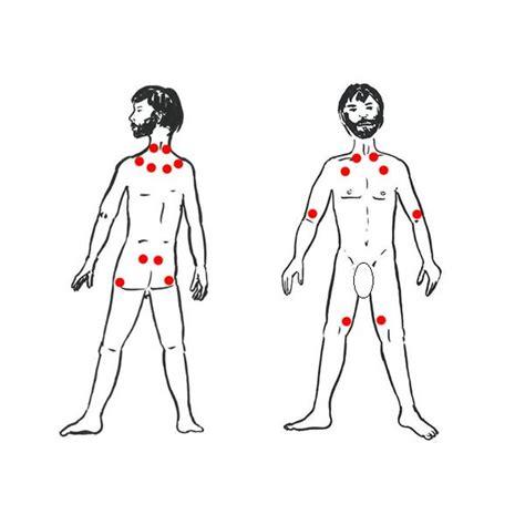 pressure points fibromyalgia diagram flavdabsoting fibromyalgia pressure points diagram