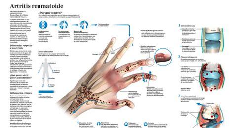 artritis reumatoide cuadro clinico artritis reumatoide qu 233 es s 237 ntomas y tratamiento