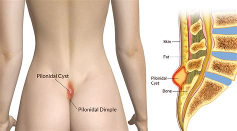 pilonidal cyst location healthhymn com get well soon