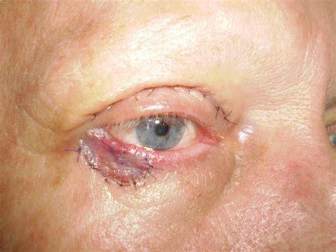 skin cancer pictures skin cancer symptom symptoms of skin cancer skin cancer symptoms pictures