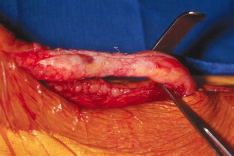 symptoms of c section scar rupture can you have vbac after 2 c sections the truth about