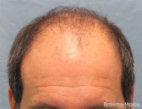 hair cloning latest news hair cloning bernstein medical newhairstylesformen2014 com