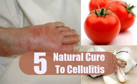 best antibiotics for cellulitis 5 cures for cellulitis how to cure cellulitis